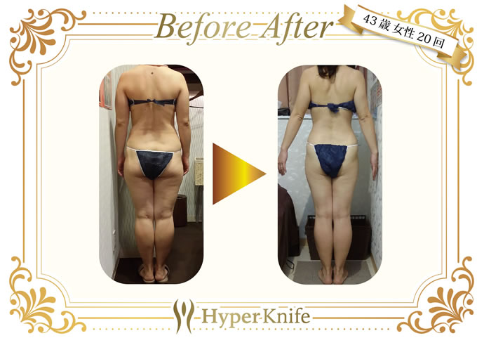 Before&After02