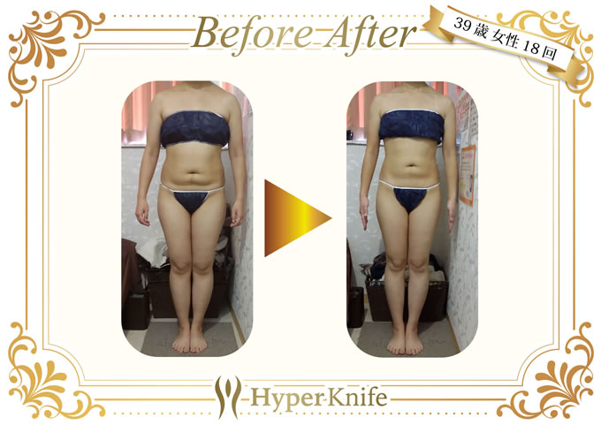 Before&After01